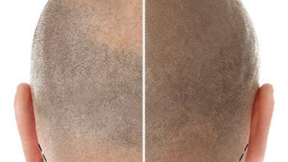 Tricopigmentazione a Caserta